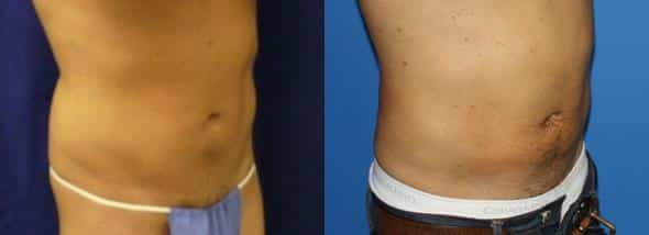 patient-1851-male-liposuction-before-after-1