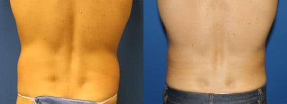 patient-1851-male-liposuction-before-after