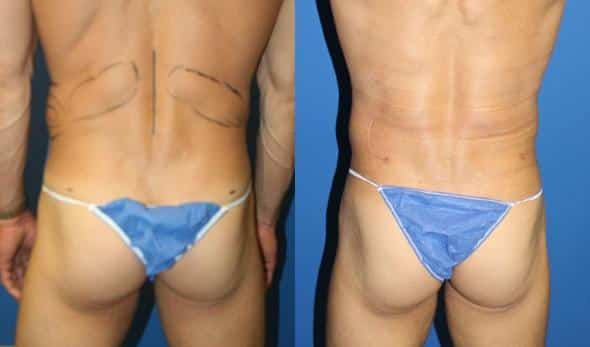 patient-1856-male-liposuction-before-after-1