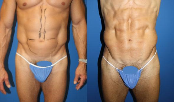 patient-1856-male-liposuction-before-after