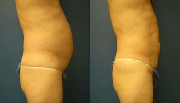 patient-1863-male-liposuction-before-after-1
