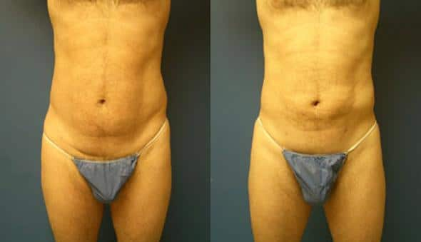 patient-1863-male-liposuction-before-after