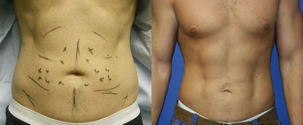 patient-1868-male-liposuction-before-after