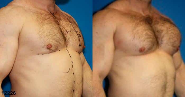 patient-1936-male-chest-augmentation-before-after-1