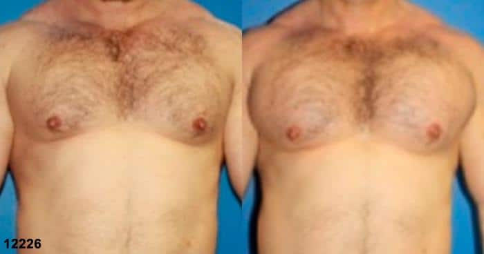 patient-1936-male-chest-augmentation-before-after
