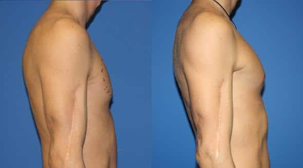 patient-1947-male-chest-augmentation-before-after-1