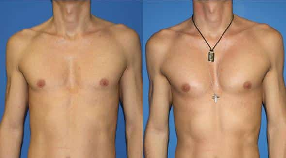 patient-1952-male-chest-augmentation-before-after
