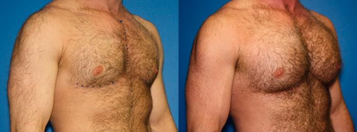 patient-1959-male-chest-augmentation-before-after-1
