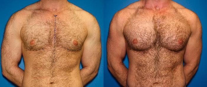 patient-1959-male-chest-augmentation-before-after