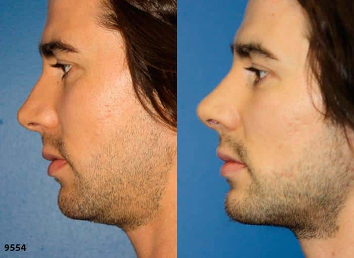 patient-1980-male-rhinoplasty-before-after