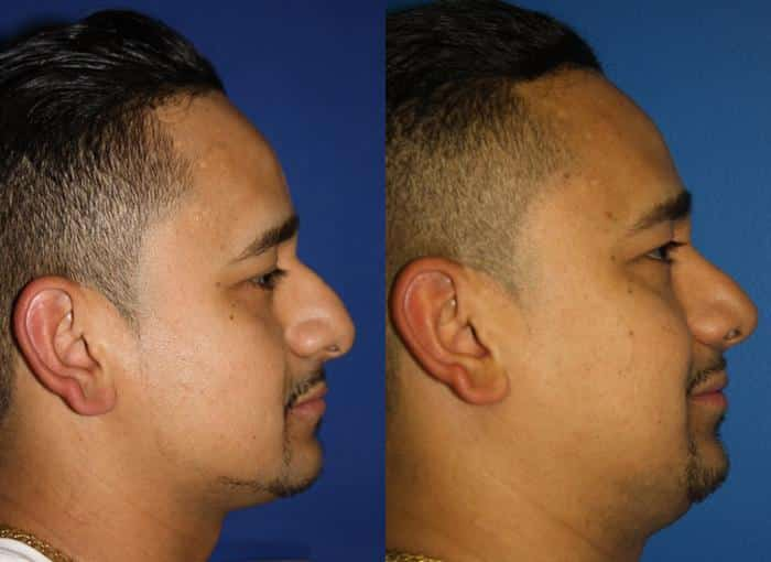 patient-1988-male-rhinoplasty-before-after-1