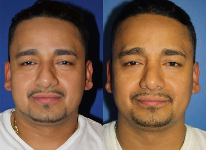 patient-1988-male-rhinoplasty-before-after