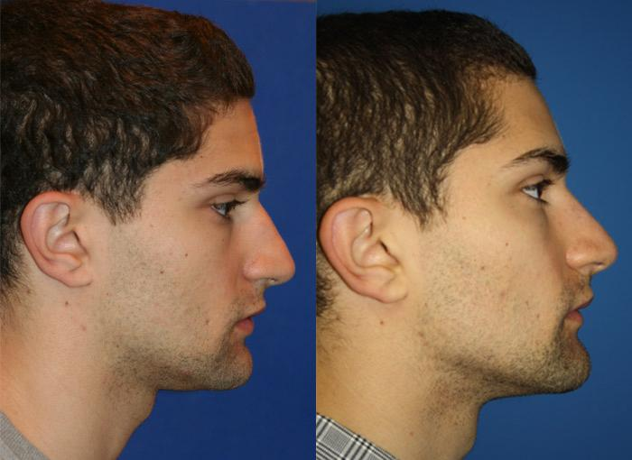 patient-1993-male-rhinoplasty-before-after-1