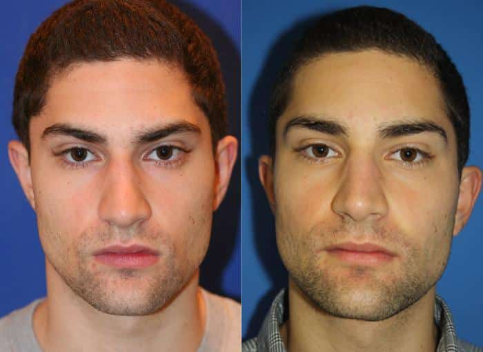 patient-1993-male-rhinoplasty-before-after