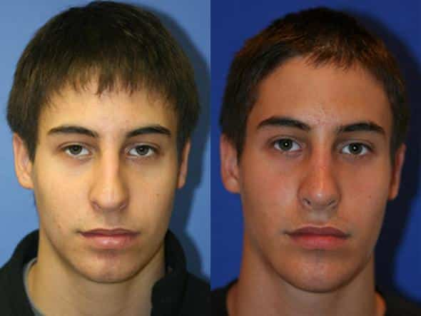 patient-1998-male-rhinoplasty-before-after