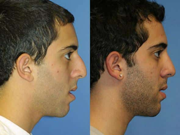 patient-2007-male-rhinoplasty-before-after-1