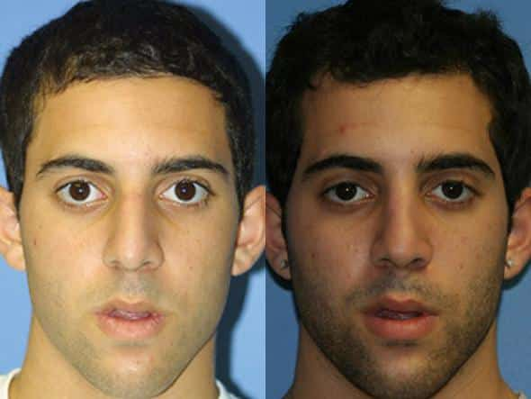 patient-2007-male-rhinoplasty-before-after
