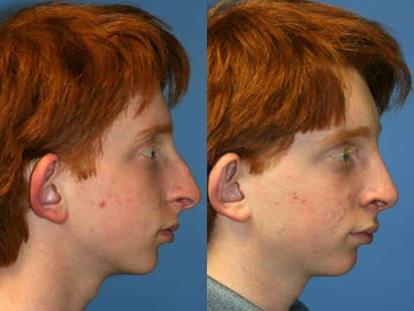 patient-2012-male-rhinoplasty-before-after-1