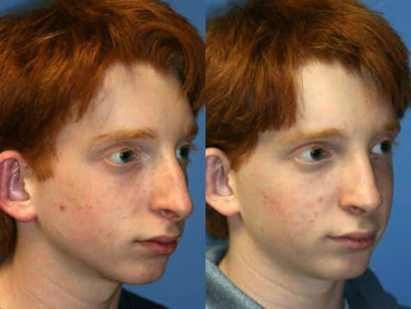 patient-2012-male-rhinoplasty-before-after