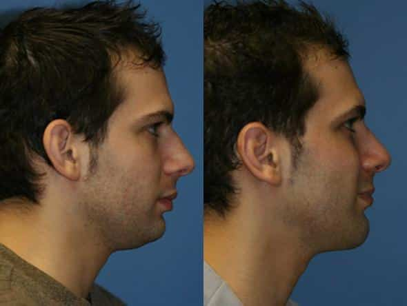 patient-2017-male-rhinoplasty-before-after-1