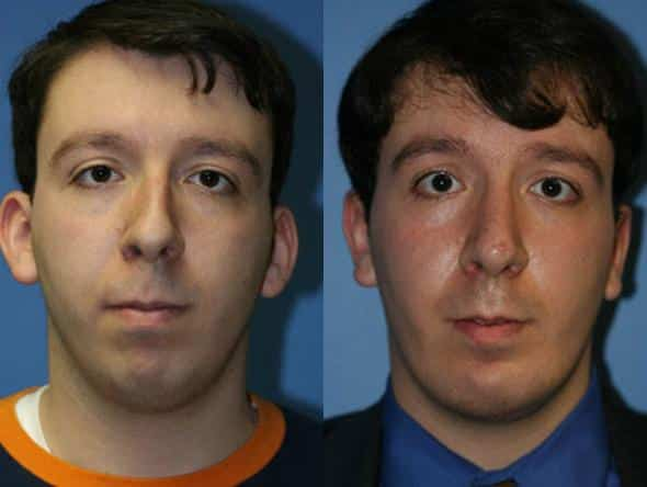 patient-2024-male-rhinoplasty-before-after
