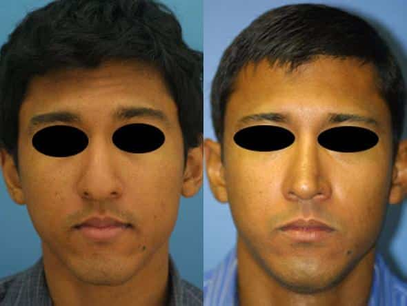 patient-2027-male-rhinoplasty-before-after