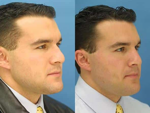 patient-2033-male-rhinoplasty-before-after