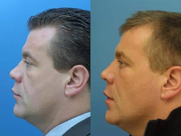 patient-2036-male-rhinoplasty-before-after