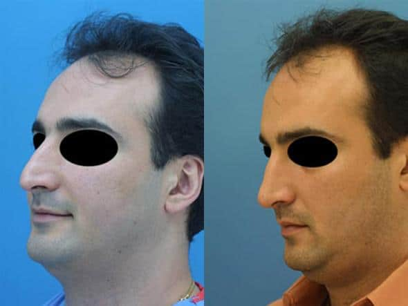 patient-2039-male-rhinoplasty-before-after