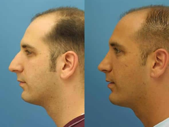 patient-2042-male-rhinoplasty-before-after