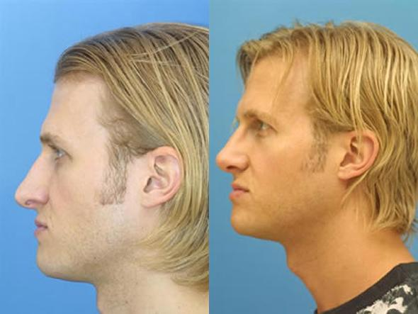 patient-2055-male-rhinoplasty-before-after-1