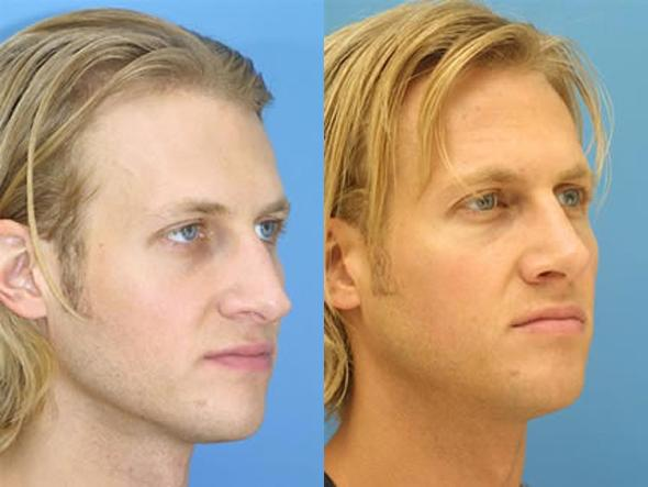 patient-2055-male-rhinoplasty-before-after