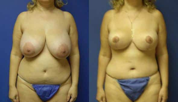 patient-2102-mommy-makeover-before-after