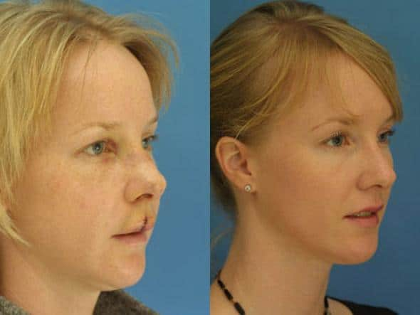 patient-2121-nasal-fracture-repair-before-after-1