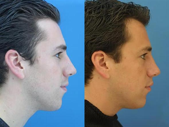 patient-2129-nasal-fracture-repair-before-after