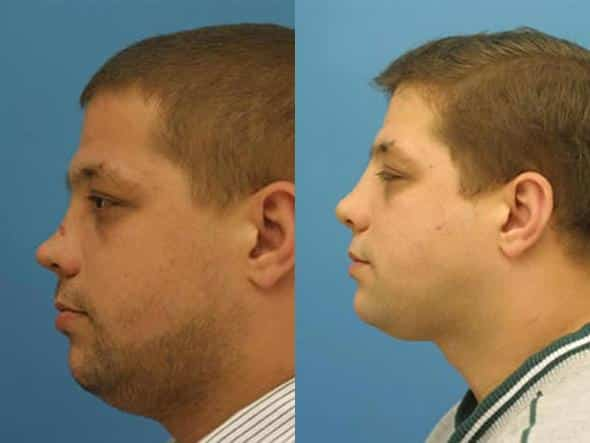 patient-2132-nasal-fracture-repair-before-after