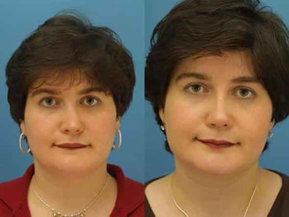 patient-2135-nasal-fracture-repair-before-after