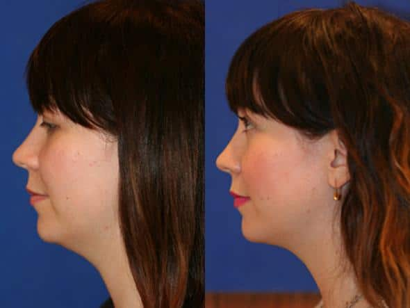 patient-2138-neck-liposuction-before-after-1