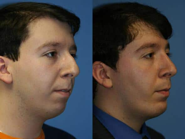 patient-2144-neck-liposuction-before-after-1