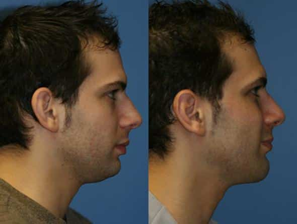 patient-2151-neck-liposuction-before-after-1