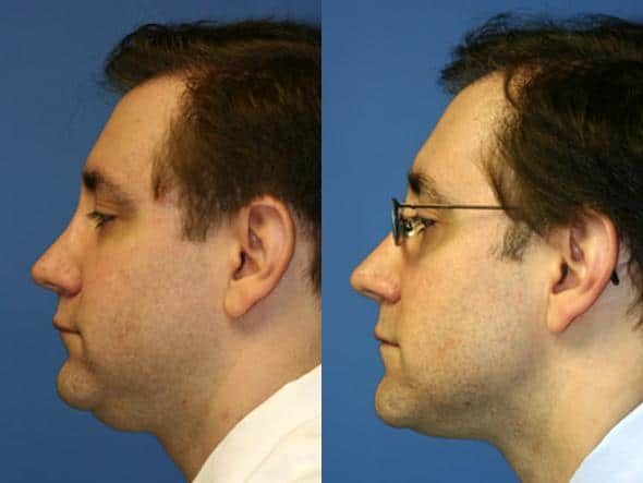 patient-2158-neck-liposuction-before-after-1