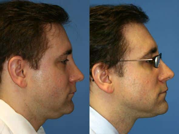 patient-2158-neck-liposuction-before-after