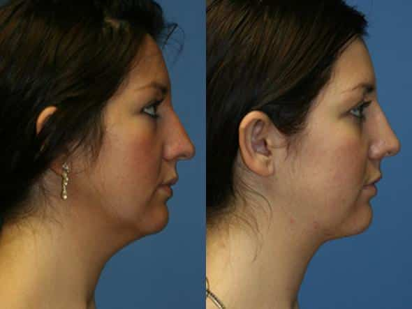 patient-2163-neck-liposuction-before-after-1