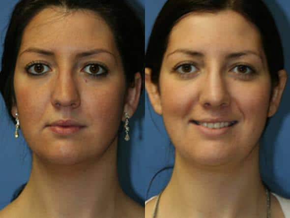 patient-2163-neck-liposuction-before-after