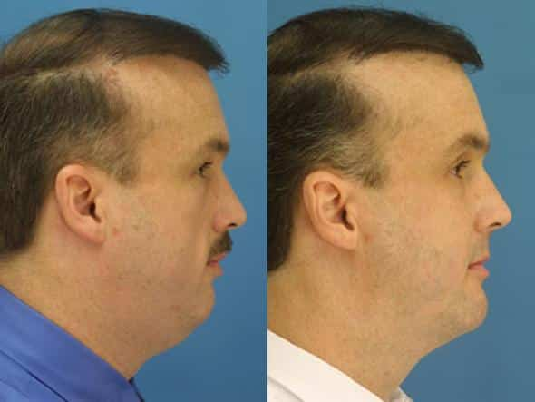 patient-2173-neck-liposuction-before-after-1