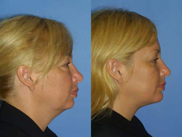 patient-2187-necklift-before-after-1