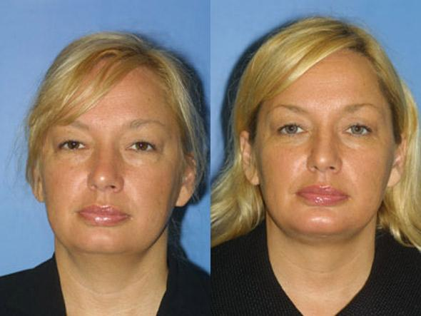 patient-2187-necklift-before-after