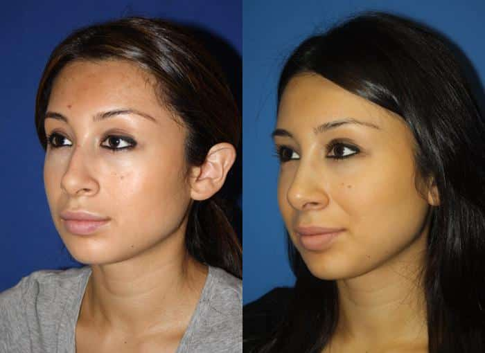 patient-2205-otoplasty-before-after-1