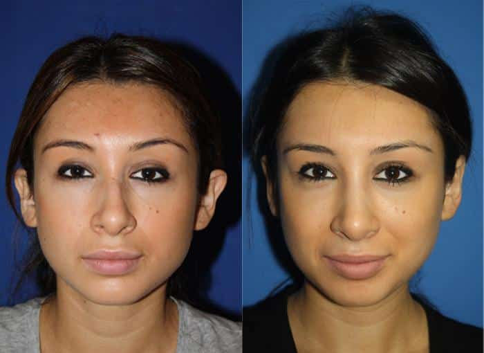 patient-2205-otoplasty-before-after