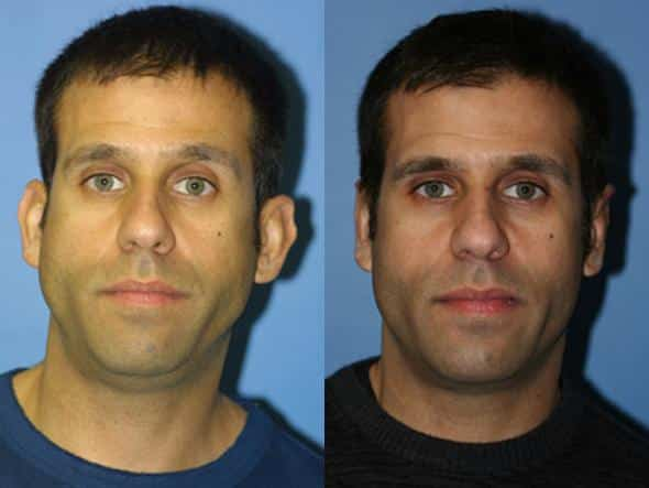 patient-2210-otoplasty-before-after